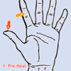 Left-Hand Fingers - Thumb & Medial Index Phalanx