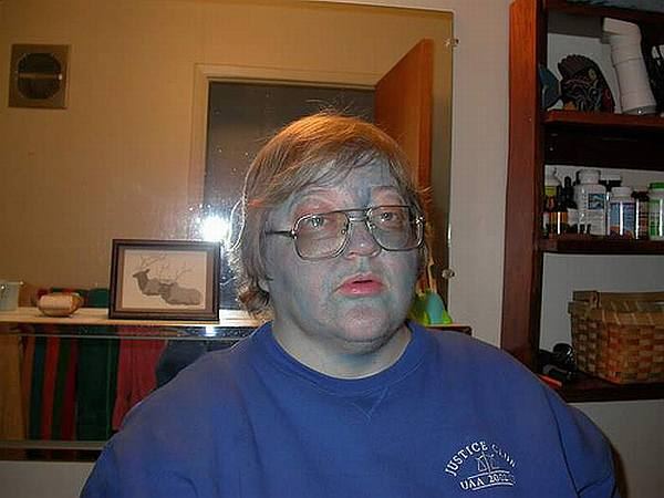 Methemoglobinemia Fugate Family | www.pixshark.com ...